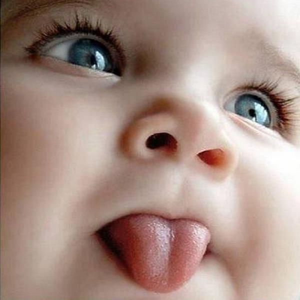 Короткая уздечка языка и грудное вскармливание